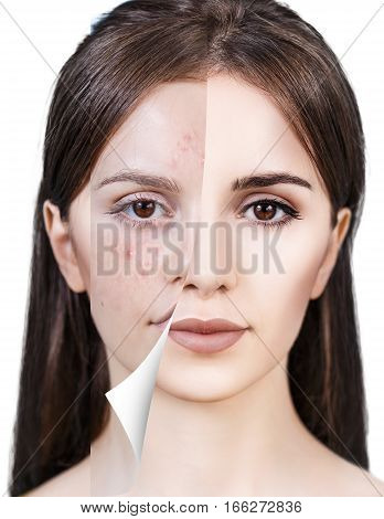 Layer with bad skin unstick from good healthy skin.