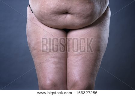 Fat female belly after pregnancy stretch marks and varicose veins closeup on gray background