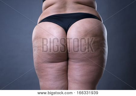 Fat female body with cellulite fatty hips and buttocks on gray background
