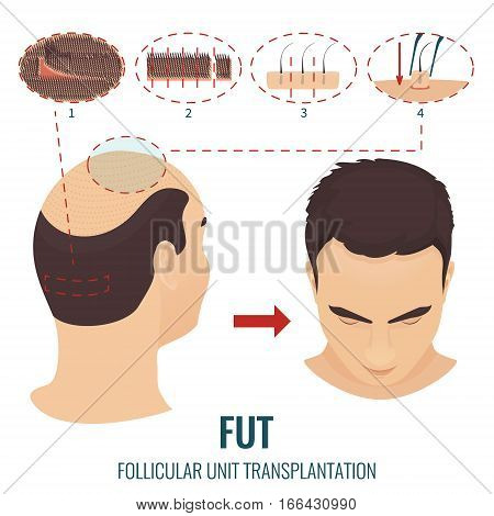 Male hair loss treatment with follicular unit transplantation. Stages of FUT procedure. Alopecia infographic medical design template. Clinics and diagnostic centers concept design. Vector illustration poster
