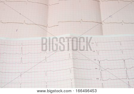 Cardiogram on the grid. ekg. close up