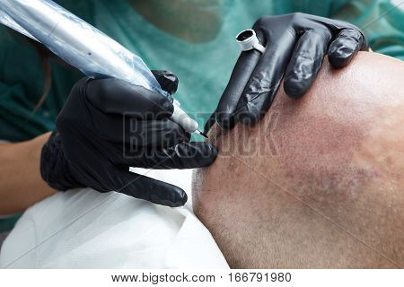 Cosmetologist making permanent makeup on male skin head - tricopigmentation applying