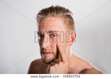 Man Squeezing Pimple On His Face. Acne Skin Problem
