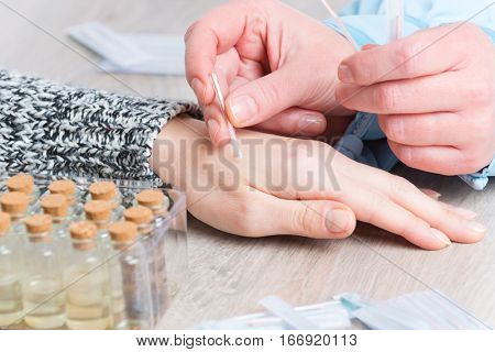 Acupuncture therapist applying acupuncture needle to her client's hand
