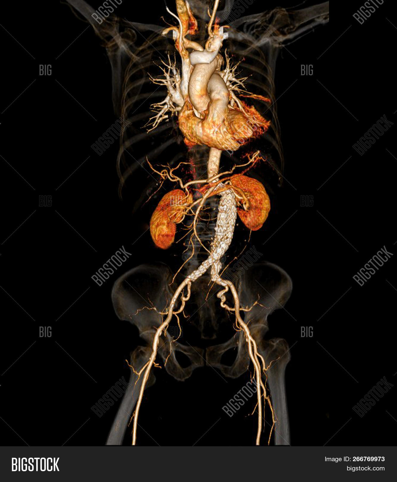 Ct Angiographphy Image Photo Free Trial Bigstock