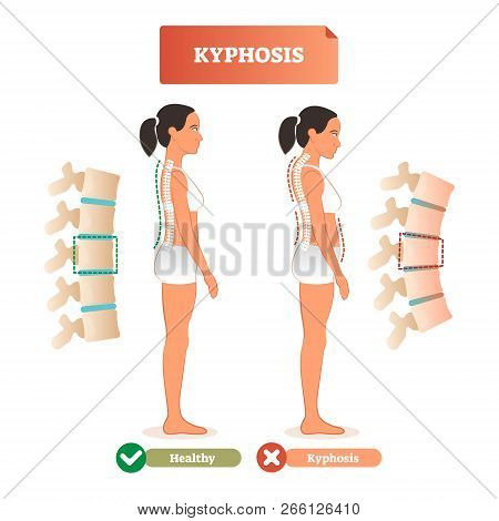 Kyphosis Vector Illustration. Back Defect Diagnosis Compared With Healthy Example. Isolated Closeup