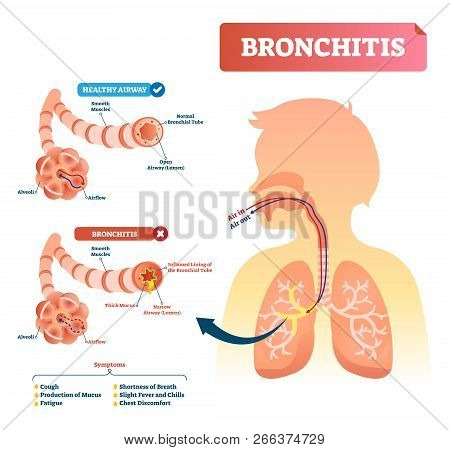 Bronchitis Vector Illustration. Lung Disease Diagnosis. Labeled Medical Diagram With Healthy Airway