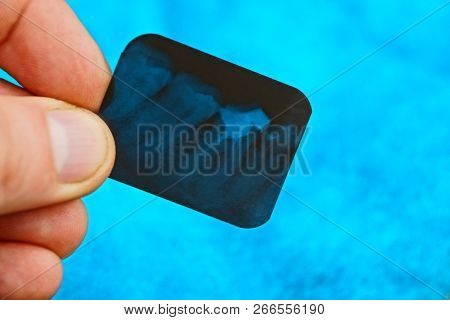 Small Black X-ray Snapshot Of Teeth In Fingers On Blue Background