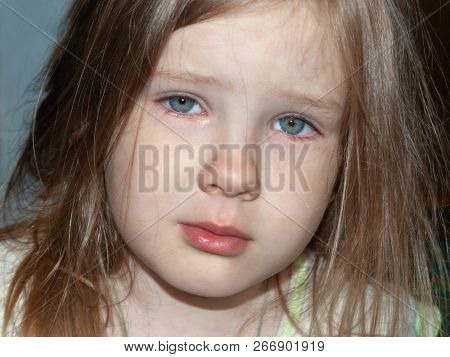 The Little Girl Is Upset. She Is Sad, Almost Crying. Eyes Are Wet. Lonely, Sad Child In Depression C