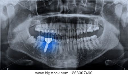 Panoramic Dental X-ray Image Mouth Of Adult Man And Single Dental Implant With Crown Attached Used F