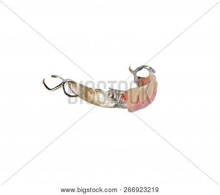 Chromium Removable Lower Partial Denture With Plastic Attachement