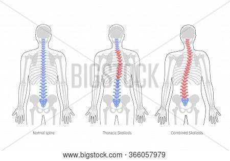 Scoliosis Flat Vector Illustration. Types Of Scoliosis Of Spine Infographics. Diagram With Spine Cur