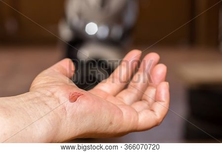 Fresh Blood Blisters On Women's Feet,reflection And Side Effect From Motorcycle Accident Lesion Inju