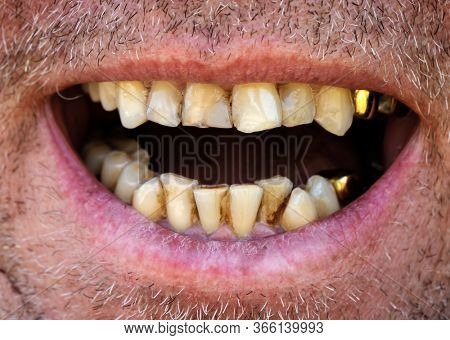 Yellow crooked teeth of a smoker, close-up