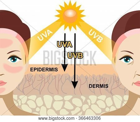 The Difference Of Radiation 2 Types In Sunlight Which Is Harmful To The Skin. Infographic Illustrati