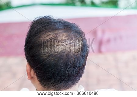 Close Up Hair Loss, Thinning Hair And Scalp Issue. Hair Loss Treatment.head With Loss Symptoms. Bald