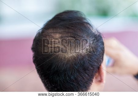 Close Up Hair Loss, Thinning Hair And Scalp Issue. Hair Loss Treatment. Head With Loss Symptoms. Bal
