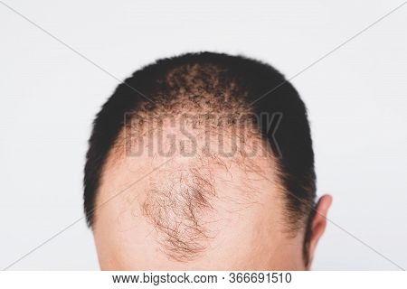 Male Pattern Hair Loss Problem Concept. Baldness, Alopecia In Males.