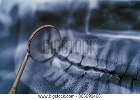 Panoramic Jaw X-ray With Dental Mirror. Dental Treatment Concept. Closeup.