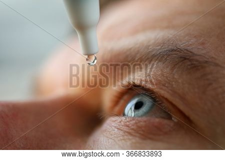 Man Drops Eye Drops Install Lenses, Moisturizing. Preservation And Solution Vision Problems. Eye Dis