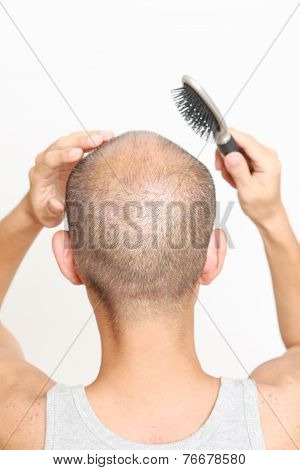 man with thin hair doing self scalp massage poster