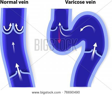 healthy vein and Varicose vein