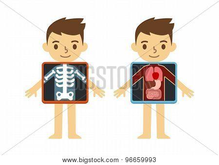 Child X-ray