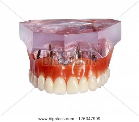 Model of top jaw and denture on implants isolated on white background