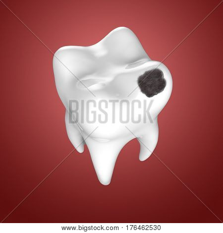 Human tooth with black hole. Dental caries, 3D illustration