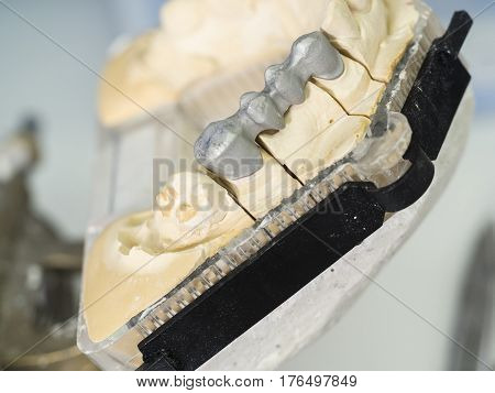 Dental Technician Is Working With Articulator In Metal Structure Of A Dental Crown Or Bridge In Dent
