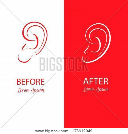Ears reshaping before and after surgery. Abstract illustration isolated on a white and red background.Template for business card and banner