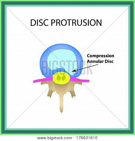 Disc protrusion. Top view. Spine. Infographics Vector illustration on isolated background