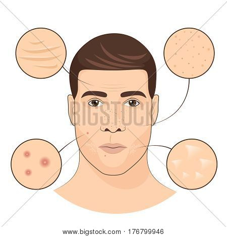 Man portrait with facial treatments. Face skin care vector illustration. Facial skin defect rashes, wrinkle and irritation
