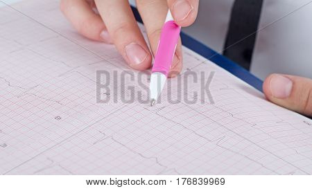 Electrocardiogram in the hands of doctor with pen.