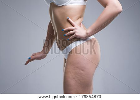 Woman in white underwear on gray background cellulite on female body studio shot