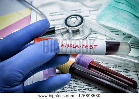 Tests For Research Of Ebola virus in the laboratory