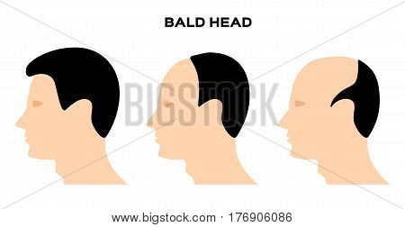 bald head vector on white background . no hair