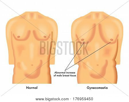 vectorial medical illustration of the effects of gynecomastia