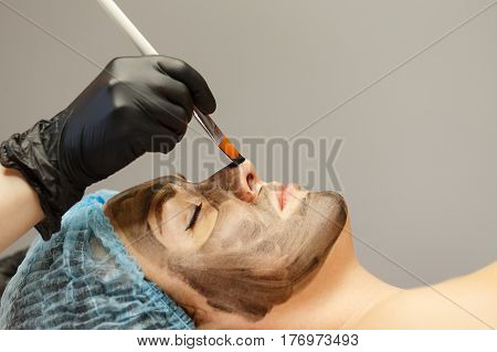 The cosmetologist applies the carbon nanogel to the skin of the client's face. Preparation for laser treatment of the skin. Carbon face peeling.