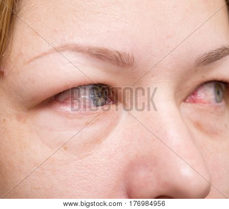 close up shot of woman red eyes