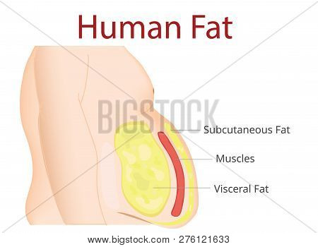 Body Fat, Liposuction, Diet , Surgery, Exercise - Vector