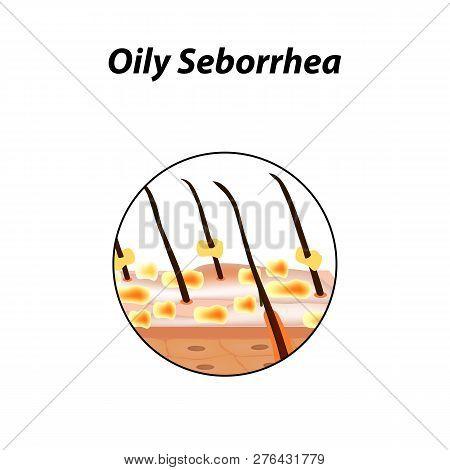 Oily Seborrhea Of Skin And Hair. Dandruff, Seborrheic Dermatitis. Baldness, Hair Growth, Baldness. A