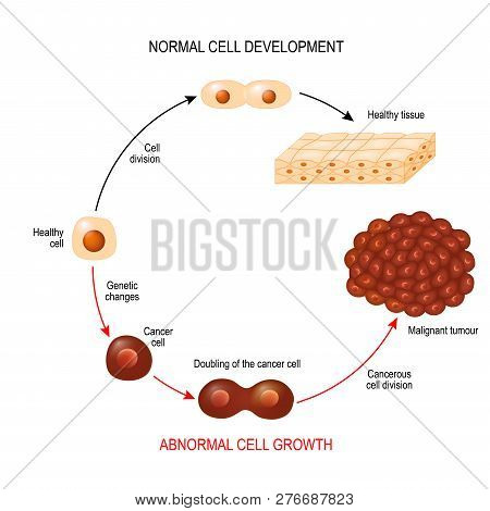 Cancer Cell And Normal Cell. Healthy Tissue And Malignant Tumour. Illustration Showing Cancer Diseas