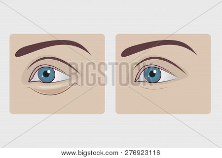 Bags Under Eyes Of Woman, Plastic Surgery To Remove Hernia Under Eyes Of Girl, Swollen Lower Eyelid.