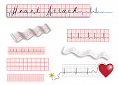 Full page of EKG strips with title and spot illustrations poster