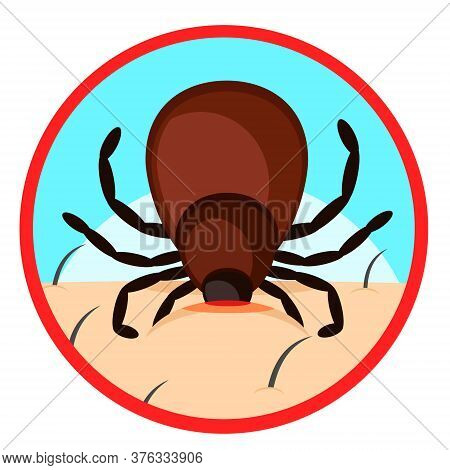 Mite Bites A Person S Body. Warning Sign