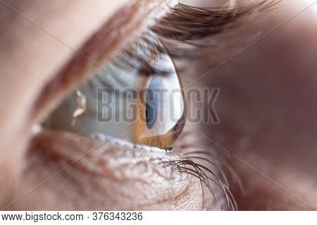 Macro Picture Of The Eye. The Cornea In The Form Of A Cone, The Disease Of The Eye Keratoconus. Asti