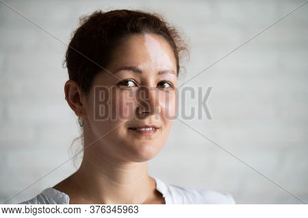 Vitiligo Portrait Image Photo Free Trial Bigstock
