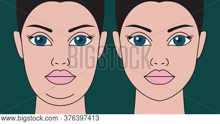 Double Chin, Restoration Of Facial Contours With Aid Liposuction, Weight Loss And Exercise. Rejuvena