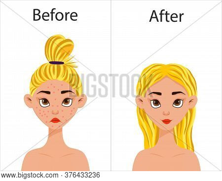 Girl Before And After Acne Treatment. Cartoon Style. Vector Illustration.